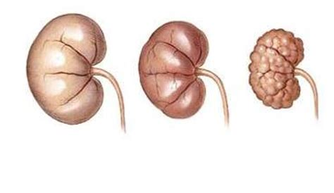 Research article on renal failure